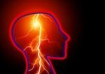 Epilepsie als neurologische Erkrankung